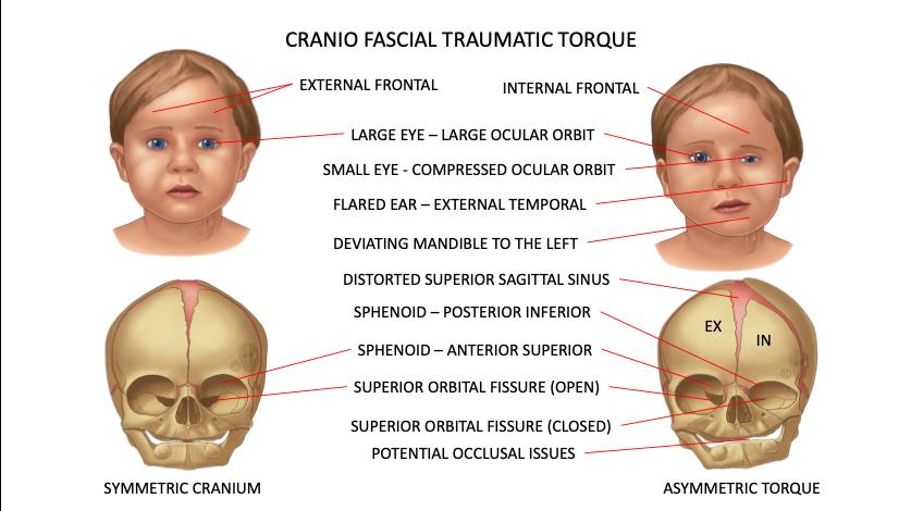 CFD Cranio Fascial Traumatic Torque