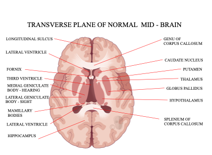 CFD Transverse Plane Brain