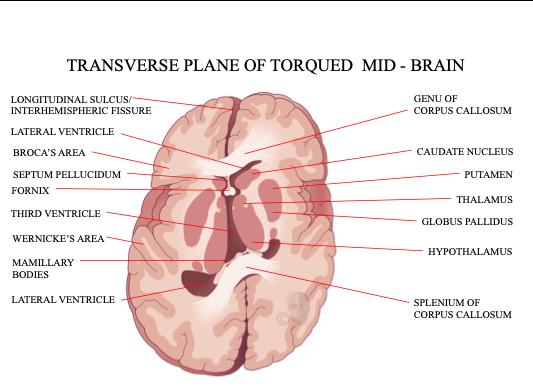 CFD Transverse Plane Torqued Brain