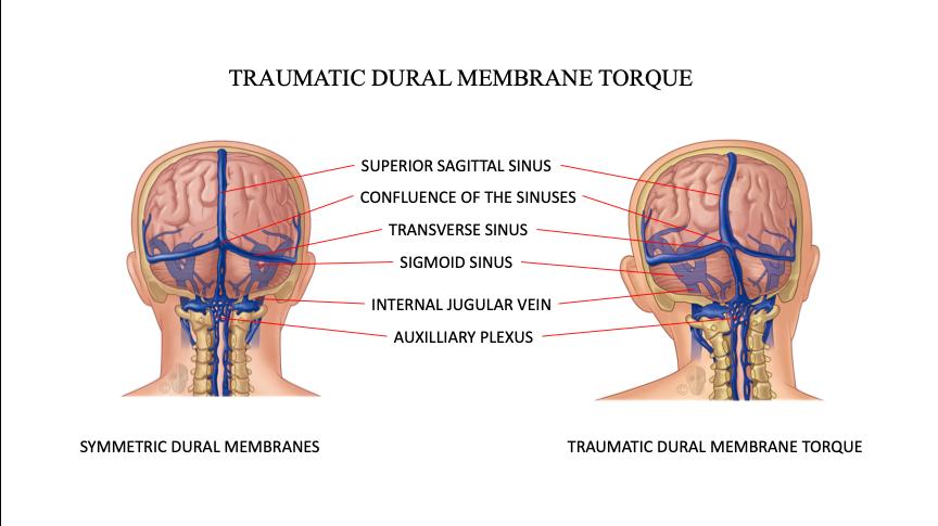 CFD Traumatic Dural Membrane Torque
